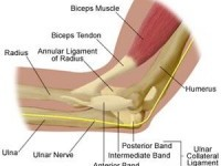 Training More Effective Than Anti Inflammatories for Tennis Elbow