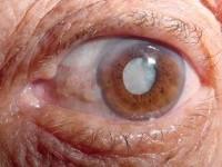 """Seria o fim das cirurgias? Cientistas desenvolvem colírio que """"derrete"""" a catarata nos olhos – Jornal Ciência"""
